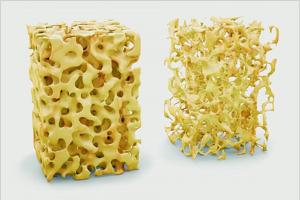 Astragalus pogromca osteoporozy?